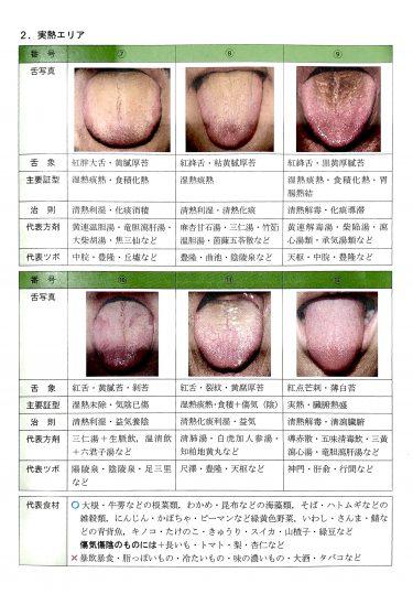 舌診でわかる、お酒を控えるべき体質