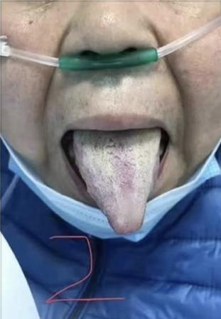 武漢の現場から新型肺炎と漢方、99%カットのマスクはウイルスが1%も通過する
